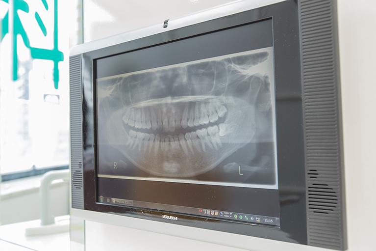 親知らずの抜歯は知識と経験、技術が必要です。